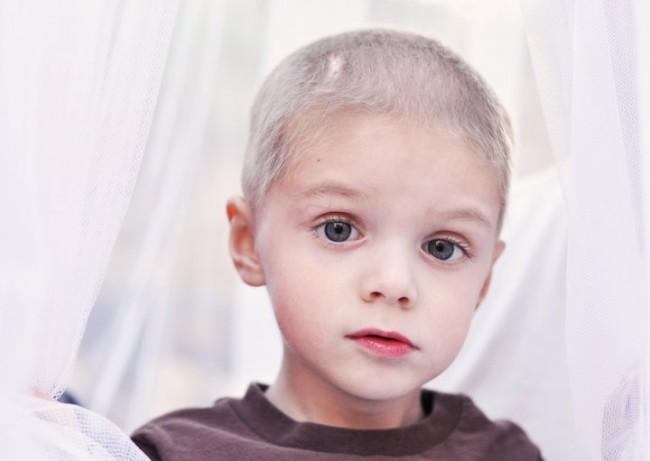 Top 10 meest gestelde vragen over chemo & haaruitval.